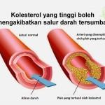 Shaklee Penang: Garlic Menurunkan kolestrol