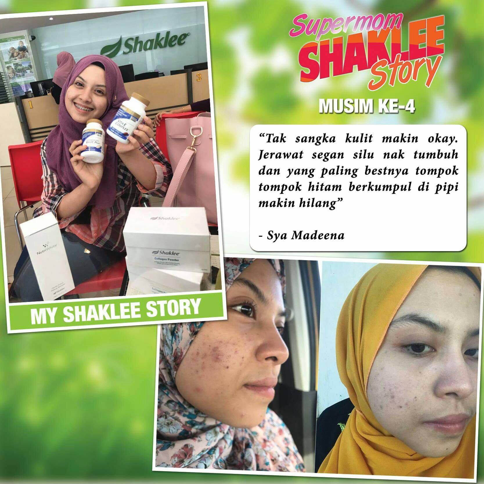 Pengedar Shaklee Kepala Batas:Testimoni Set Kulit Cantik Shaklee